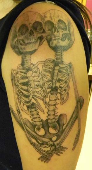 Caroline Evans - Siamese Twins Skeleton