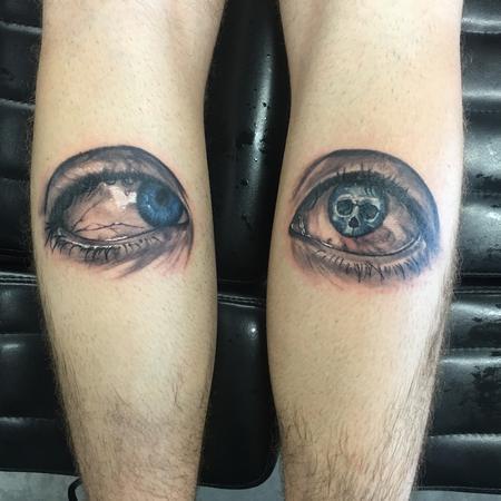 Tattoos - Duane syndrome eyes - 119135