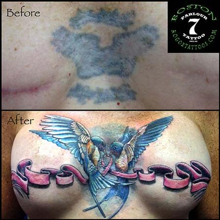 Boston Rogoz - Mastectomy scar cover-up tattoo