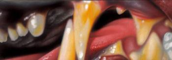 Nick Baxter - teeth