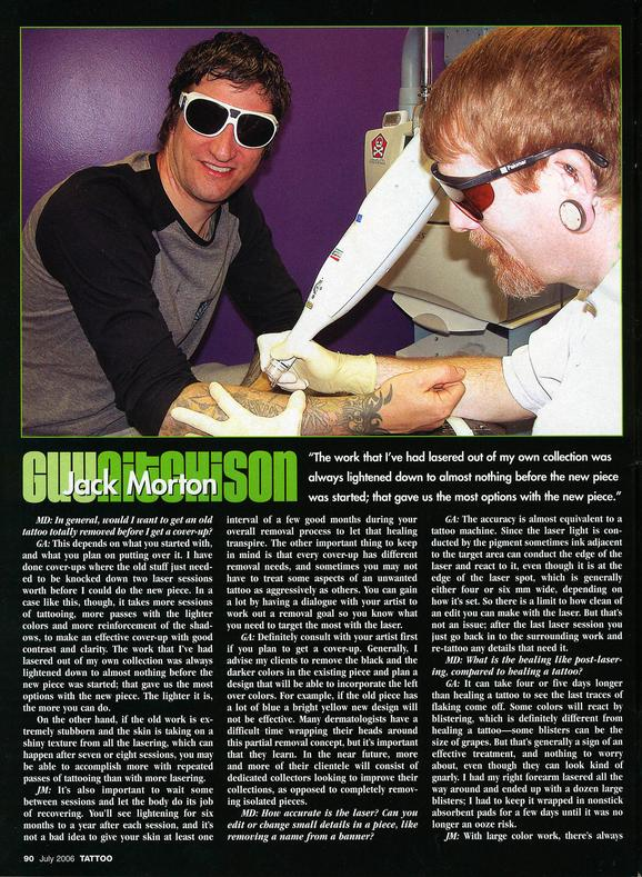 - Laser Article, Tattoo Mag, 2006, Page 5
