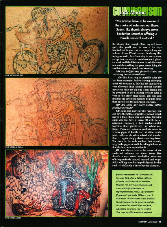 - Laser Article, Tattoo Mag, 2006, Page 6