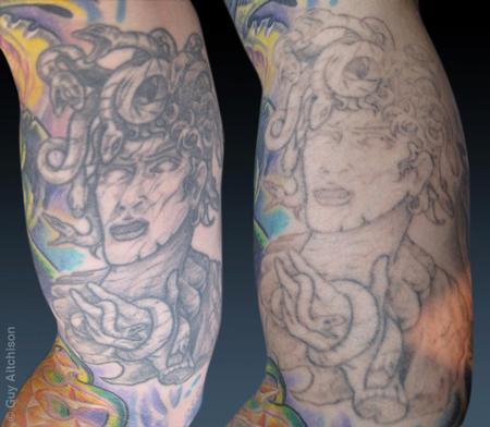 Tattoos - Don, before and after several laser sessions - 71527