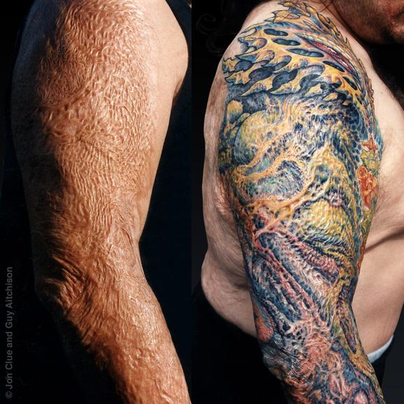 Guy Aitchison - Anthony (burn scar coverup), Collaboration by Jon Clue and Guy Aitchison