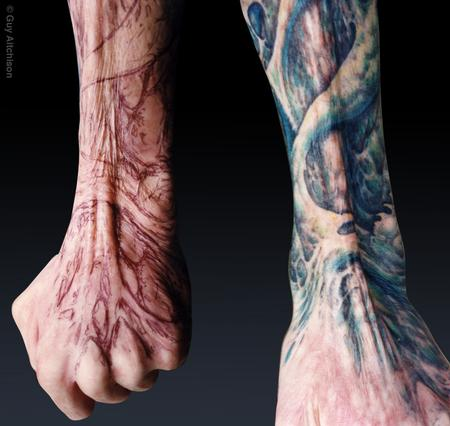 Guy Aitchison - Grime, third degree burn scar coverup