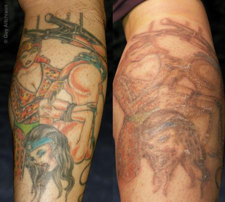Tattoos - Hiro, before lasering - 71544