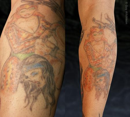 Tattoos - Hiro, first and second laser sessions - 71545